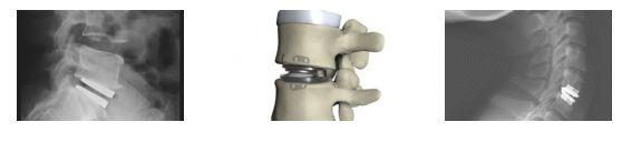 Οι Τεχνητοί Δίσκοι, όπως λέει και το όνομά τους, είναι μηχανικά υποκατάστατα τα οποία τοποθετούνται στην θέση αφαιρεθέντων δίσκων λόγω εκφύλισης η κήλης στην αυχενική και την οσφυϊκή  σπονδυλική στήλη.