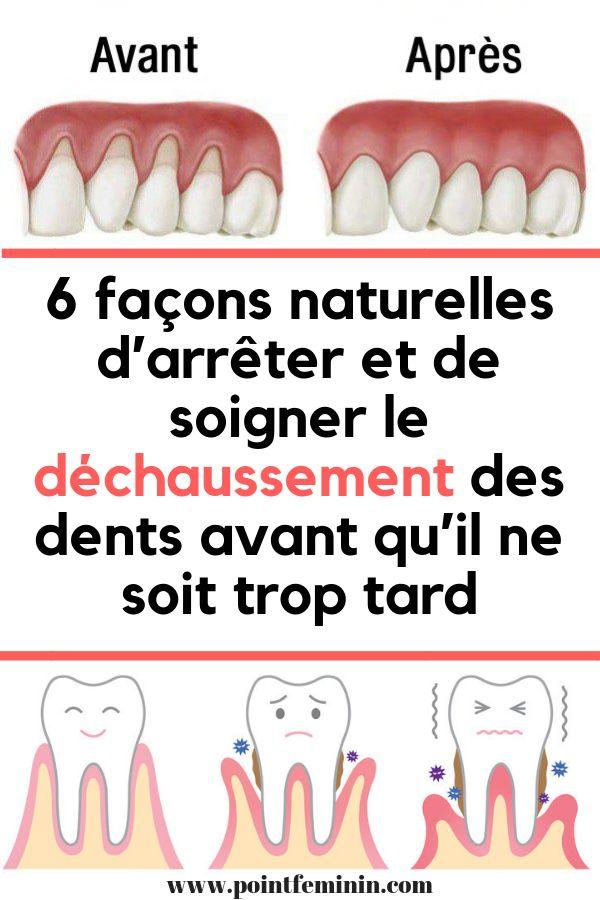 6 façons naturelles d'arrêter et de soigner le déchaussement des dents avant qu'il ne soit trop tard