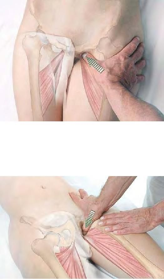 Basic Clinical Massage Therapy (print to show clients what is being worked on - for visual learners)