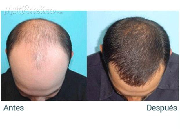 Caida del cabello finasteride