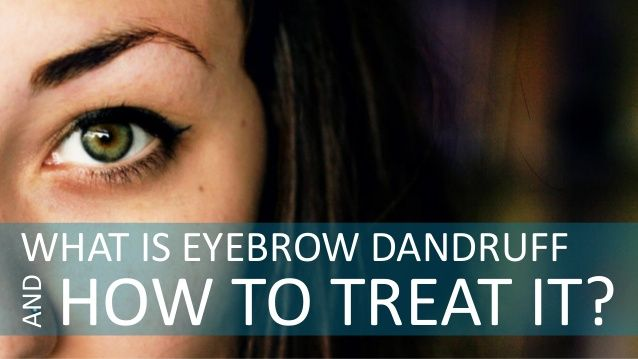 What Is Eyebrow Dandruff and How to Treat It