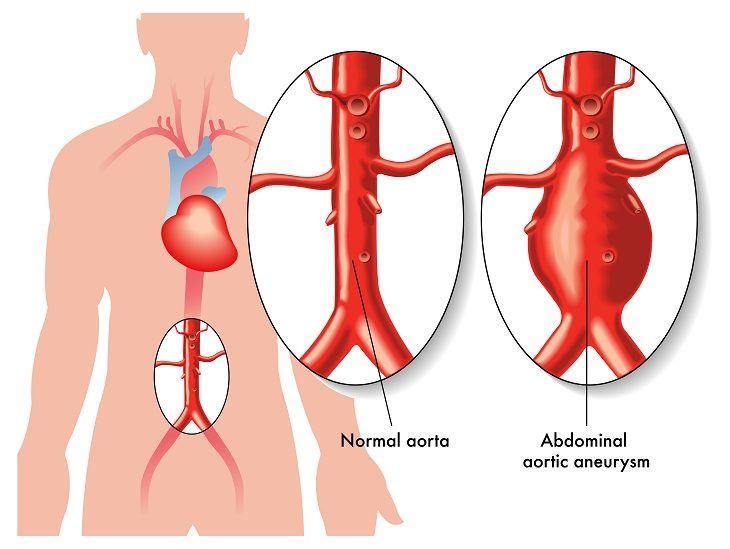 varicose aorta venele varicoase ale bărbaților gaitra