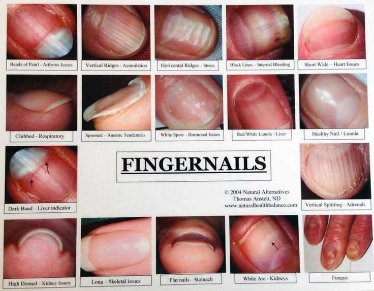 Best 25 nail diseases and disorders ideas on pinterest skin 1 fingernail with disorder sciox Image collections