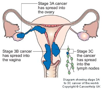 Endometrial cancer is the most common type of uterine cancer. Although the exact cause of endometrial cancer is unknown, increased levels of estrogen appear to play a role.