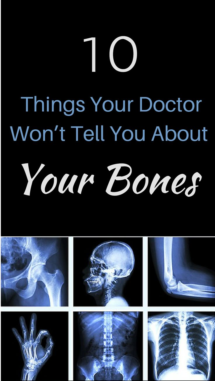 10 Things Your Doctor Won't Tell  You About Your Bones