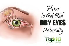 Dry eyes, also known as dry eye syndrome, occurs when your tears are not providing enough lubrication for your eyes. This can cause a lot of discomfort and produce several signs and symptoms. Some signs and symptoms of dry eyes are a stinging or burning sensation in the eyes, stringy mucus in or around your …