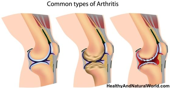 Arthritis - Foods to Eat and Foods to Avoid