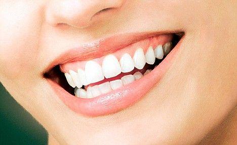 Domácí bělení zubů za pusu (ani ne)