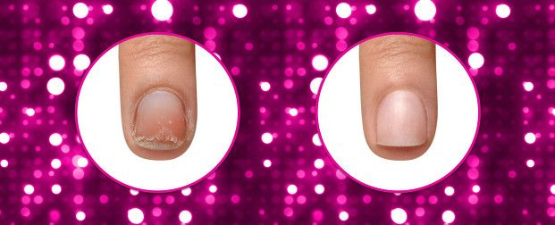 IBX nail repair and restore. Before and after! The nail strengthening system that really works.