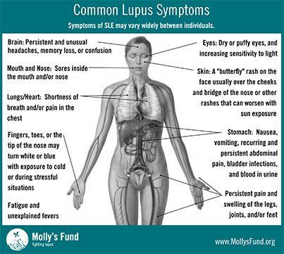 255 best Lupus Information images on Pinterest