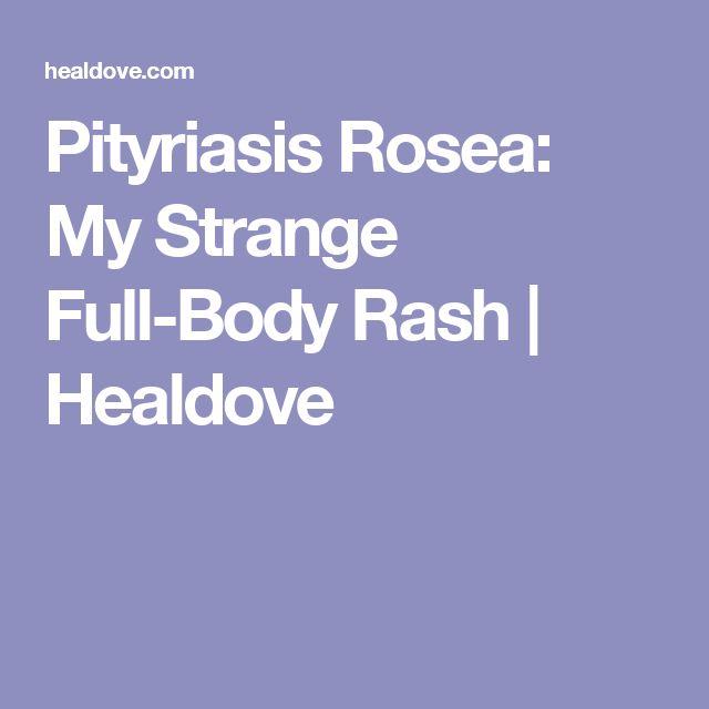 Pityriasis Rosea: My Strange Full-Body Rash | Healdove