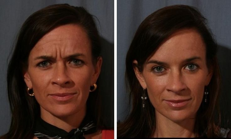 Helpful Neck And Face Restoration Exercises For A Facelift Without Surgery