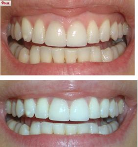 check out how white you can really go with Crest 3D Whitestrips