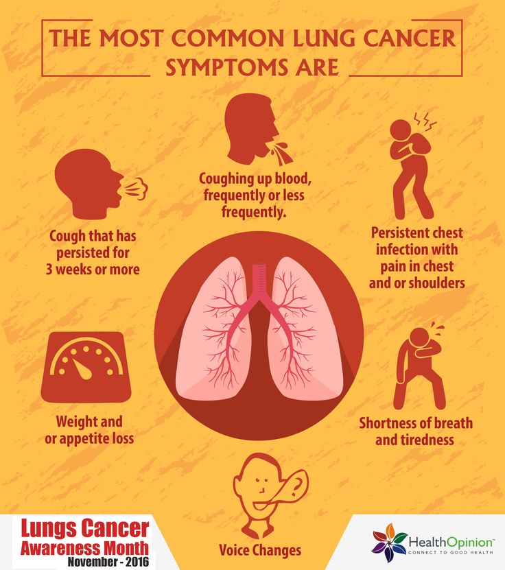 lung cancer symptoms stages and treatment Lung cancer is one of the most common cancer diagnoses in the us there are three main types of lung cancer - non-small cell, small cell, and lung carcinoid tumors treatment options vary on your .