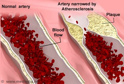 Everyone knows that atherosclerosis is a deadly disease, and research has found that Serrapeptase, a powerful enzyme, may support a healthy cardiovascular system.