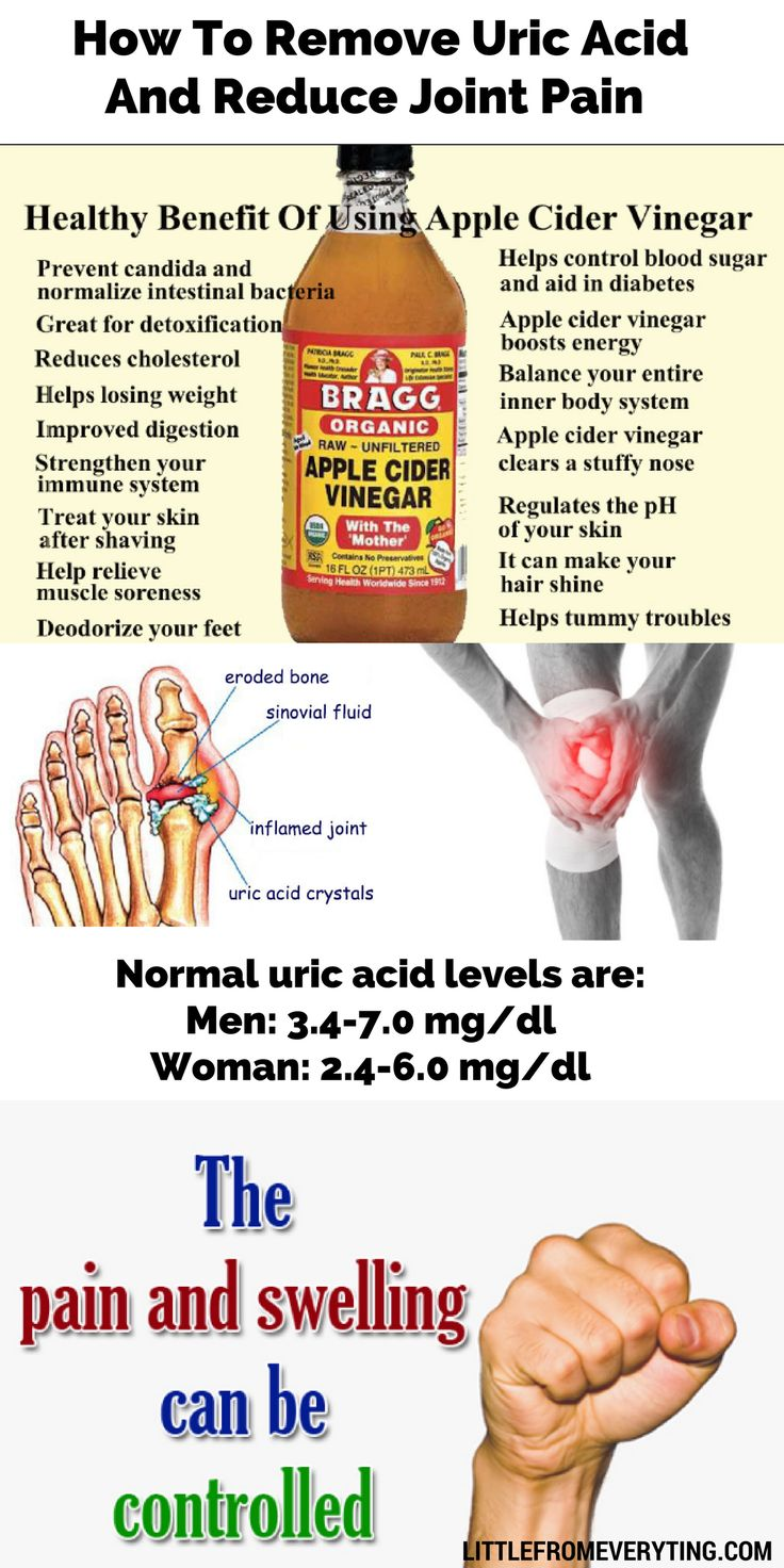 best foods for gout prevention apple vinegar reduce uric acid cures for chronic gout