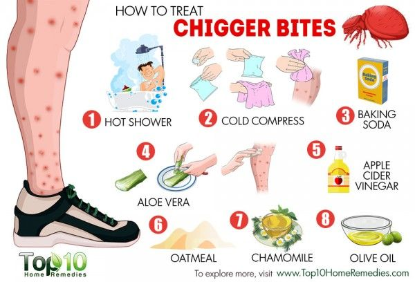 How To Treat Chigger Bites Treats And Chigger Bites