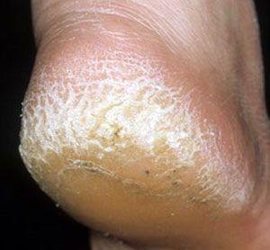 cracked feet