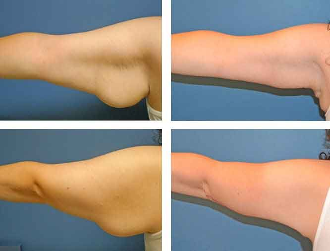 Arm liposuction results 6 – Liposuction before and after