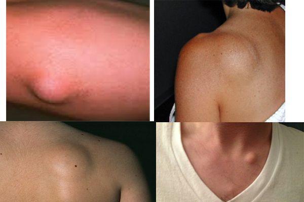 Natural Way To Remove Lipoma