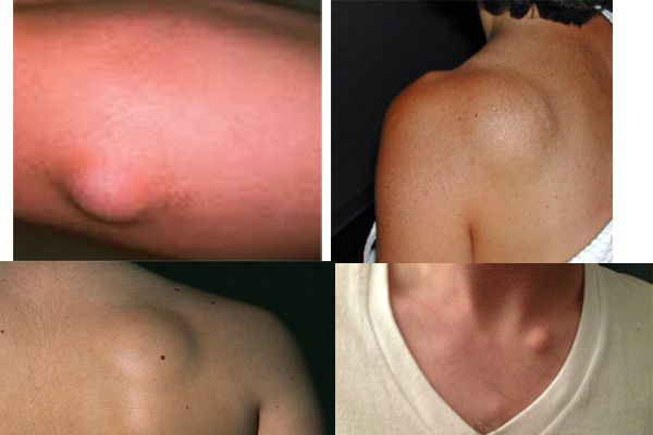 Quick And Easy – Remove Fat Tissue In A Completely Natural Way