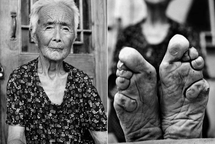 Despite the pain, millions of Chinese women stood firm in their devotion to the tradition