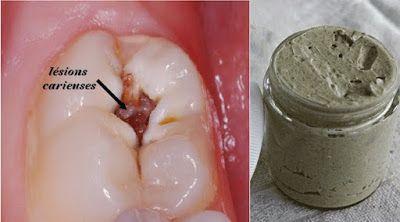 Guérir les caries, la maladie des gencives, et blanchir les dents avec ce dentifrice naturel