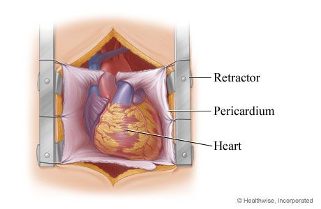 Heart exposed for aortic valve replacement