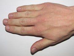 Trockene, Rissige Blutige Hände