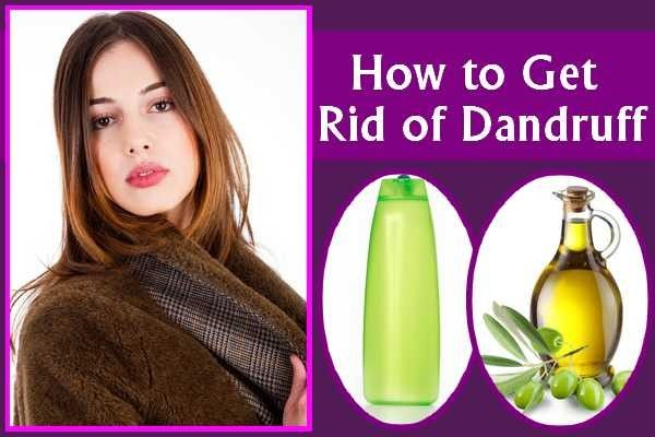 How to Get Rid of Dandruff Solution Using Herbal Remedies