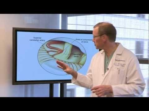 What is Trigeminal Neuralgia? Symptoms, Causes, Treatments | Dr. Neil Martin - UCLA Neurosurgery - YouTube