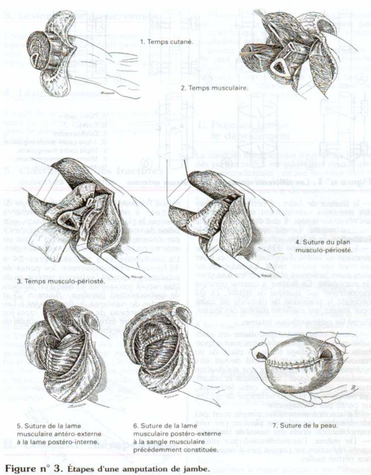 Laugmentation du membre pendant lexcitation