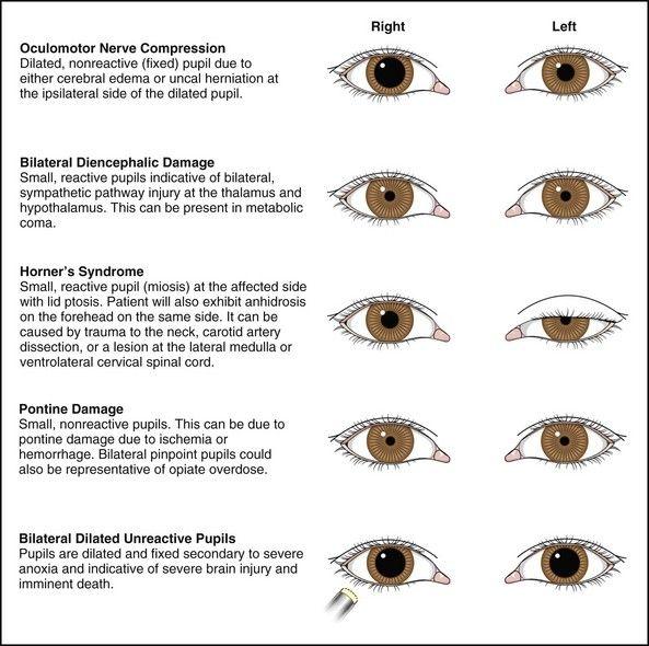 pupil anomalies + adie's + horner's + argyll robertson - Google Search