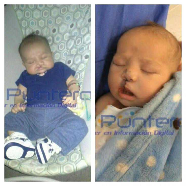 El bebé Dereck, de 27 días, primer operado con éxito en cirugías de labio y paladar hendidos del Christus | El Puntero