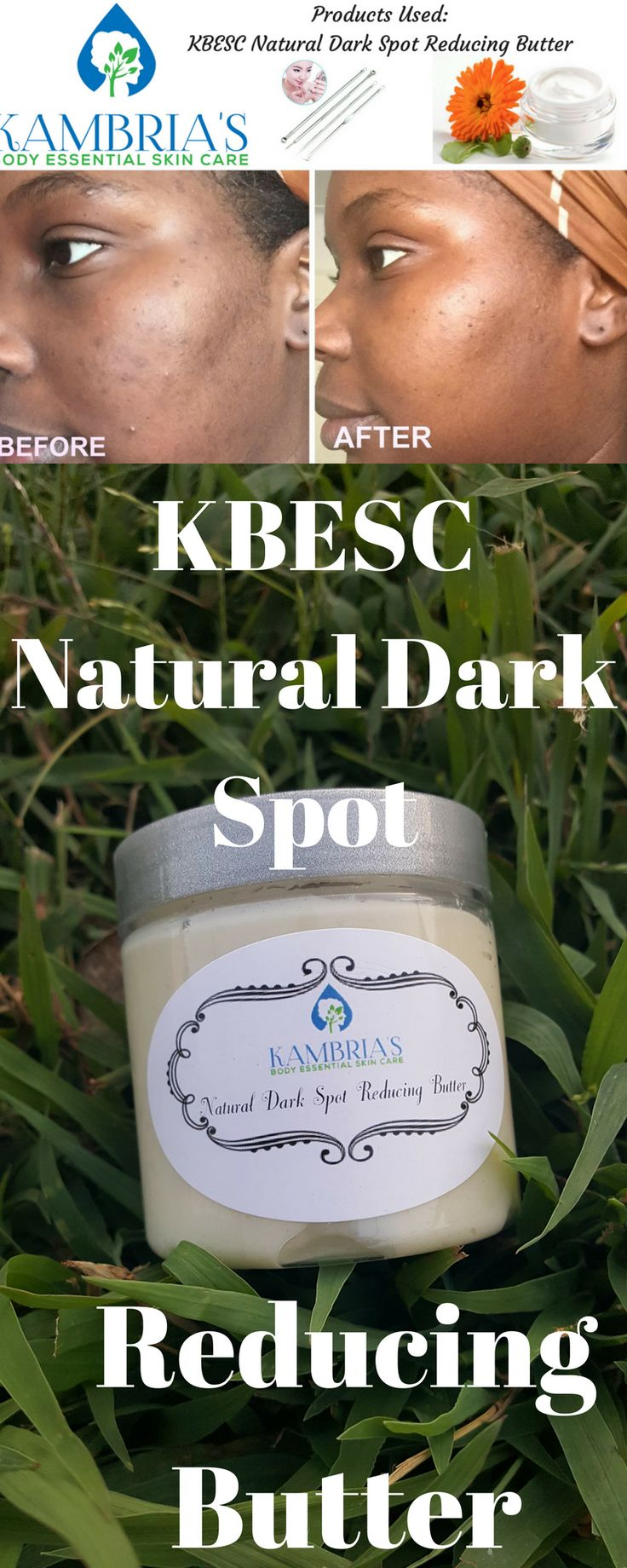 Do you have a scar that has left an ugly dark spot on your skin? Pimples leaving their signature dark marks on your face? Need to even out your skin tone? KBESC Natural Dark Spot Remover Cream will drastically reduce the appearance of any blemish or dark spot and all desired areas. Made by hand with 100% organic butters and essential oils, this dark spot remover cream is sure to leave your skin feeling silky smooth and as clear as your heart desires.