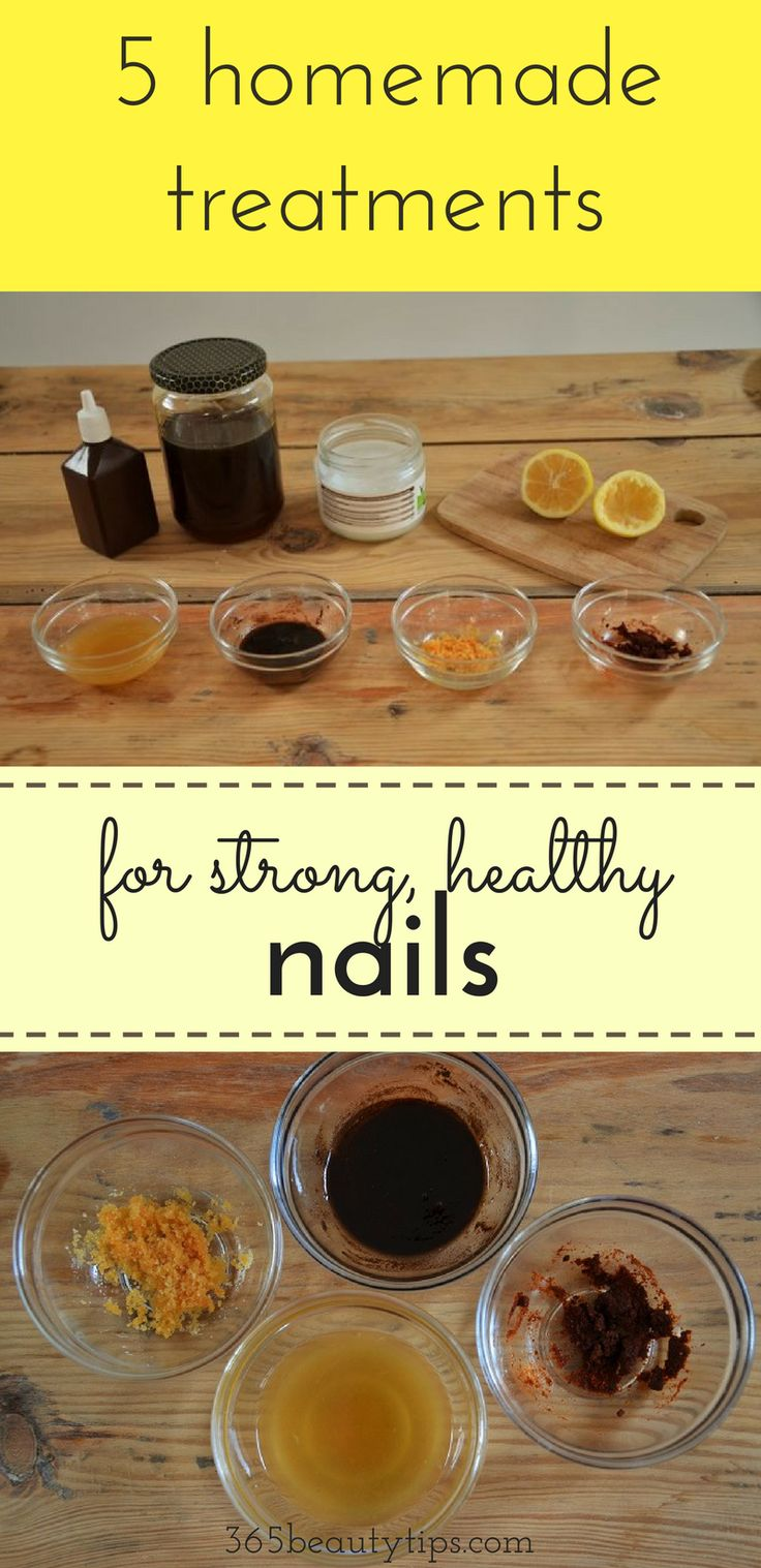 DIY: 5 homemade treatments for strong, healthy nails.