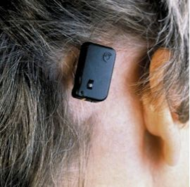 Bone anchored hearing aid in place