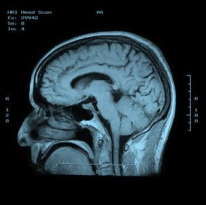 Brain imaging shows brain differences in risk-taking teens