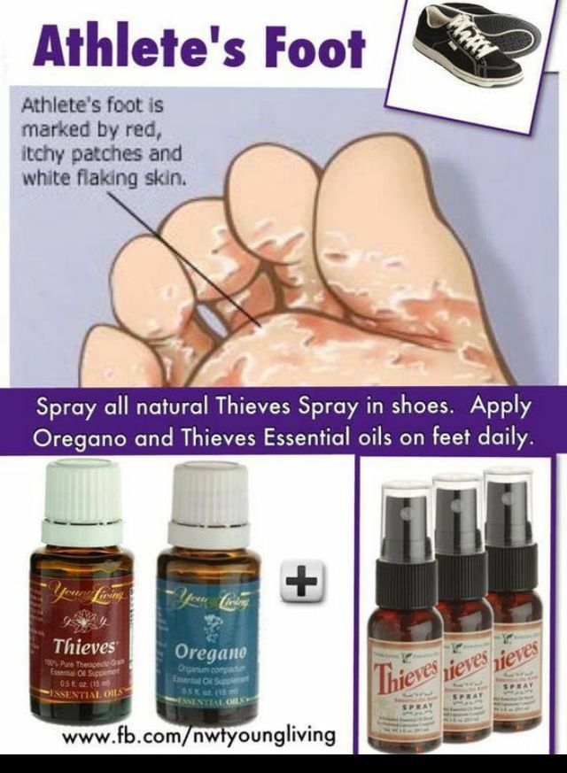 treatment for stinky feet