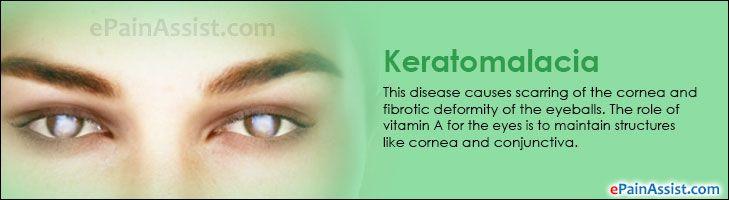 Keratomalacia: Causes, Symptoms, Treatment #Keratomalacia #treatment #eyes #eyecare #eyeballs #Dryeyes #epainassist  Read: http://www.epainassist.com/eye-pain/keratomalacia
