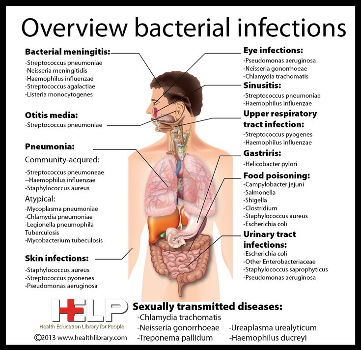 23 best Infectious Diseases images on Pinterest | Microbiology ...