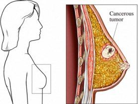 Breast Cancer Information On Breast Cancer Types!