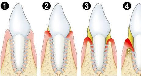 Parodontose Schematische Darstellung