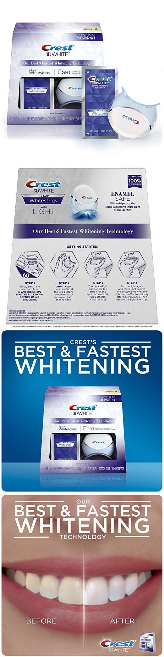Whitening: Crest 3D White Whitestrips With Light, 10 Ct. Teeth Whitening Kit BUY IT NOW ONLY: $84.99 http://reviewscircle.com/Teeth-Whitening-4-You?i=kit