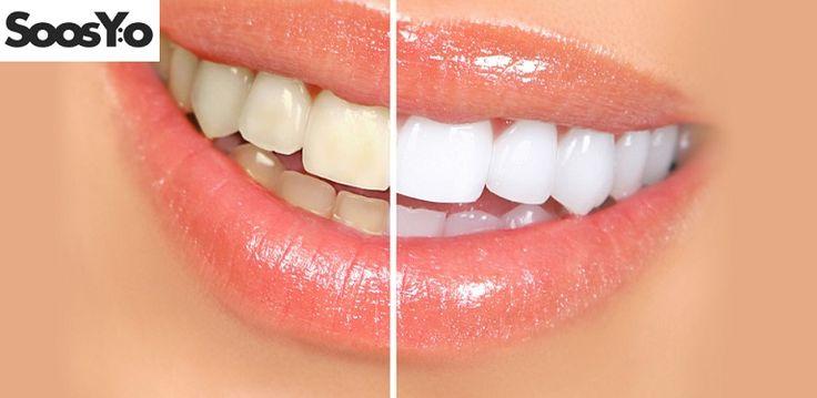 Dişleri Beyazlatmak için 5 Pratik Yöntem   1- Muz Kabuğu Yediğimiz muzun kabuklarını artık çöpe atmıyoruz ve dişlerimizi beyazlatıyoruz. Muz kabuğunun iç kısmında potasyum ve mineral bulunur. Minerallerin diş minesi tarafından emilmesi gerekiyor o yüzden acele etmeden muz kabuğunun iç yüzüyle dişlerinizi güzelce ovalayın.  2- Aktif Karbo... Eklendi, Daha fazlası için Soosyo'ya Gel!