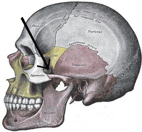 ElARCO CIGOMÁTICOes una parte del cráneo humano, más concretamente de la cara humana. El arco cigomático se forma en la unión de laapófisis cigomáticadel huesotemporalpropio de los huesos delcráneoy la articulación del apófisis malar, propio de los huesos de la cara, ubicado a un lado de lasfosas orbitales.