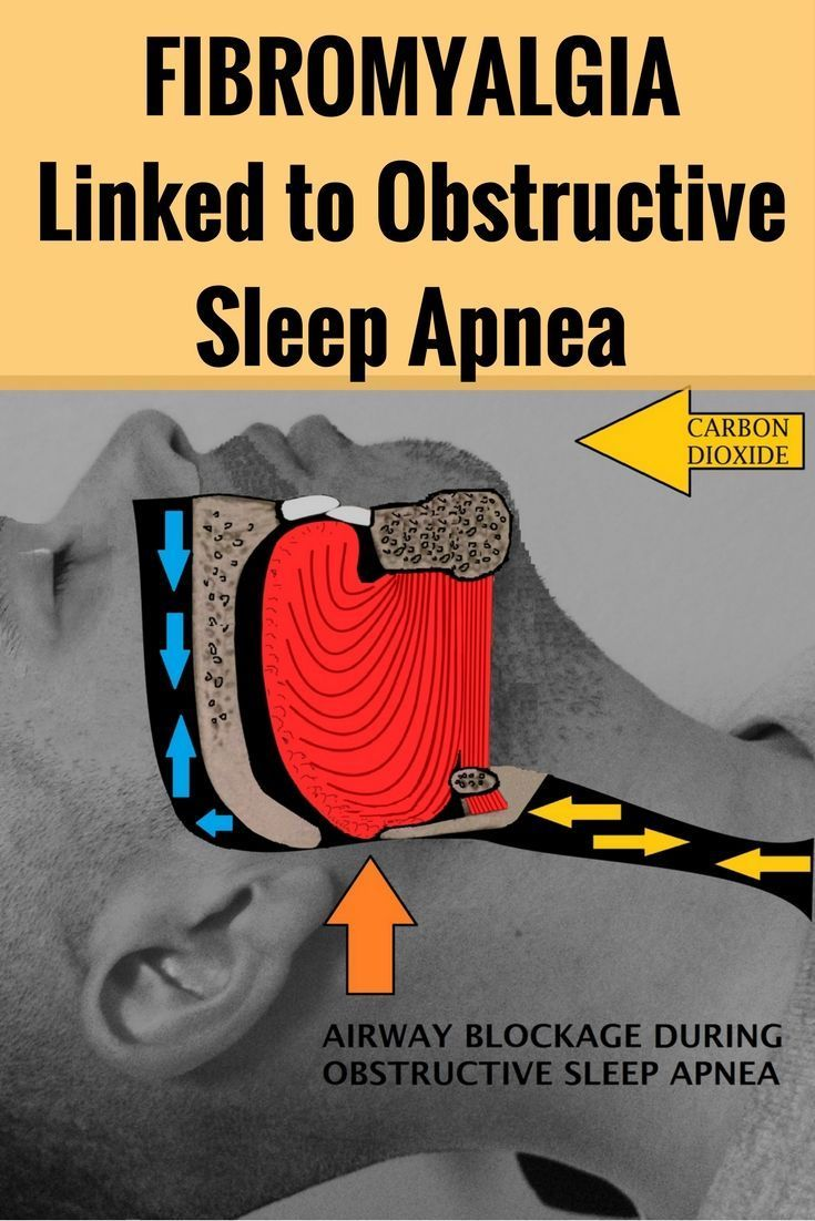 Fibromyalgia is frequent issue for obstructive sleep apnea patients