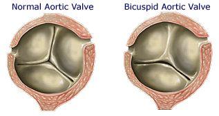 Echocardiograms: Bicuspid Aortic Valve   school   Pinterest