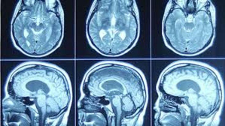 #Des ultrasons pour aider le traitement de tumeurs au cerveau - TVA Nouvelles: TVA Nouvelles Des ultrasons pour aider le traitement de…