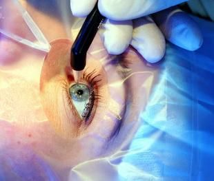 High myopia surgery in Madurai
